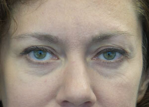 Botox Droopy Eyelid After