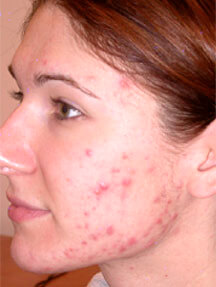 Blue Light Acne Treatment Before