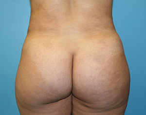 buttlift after