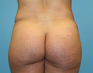 brazilian butt lift - before