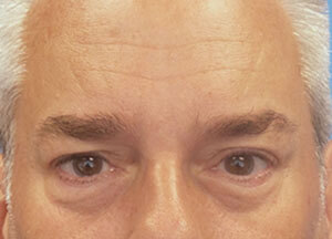 Botox for Men After