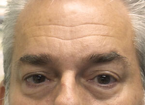 Male Botox Before