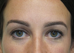 treatment botox