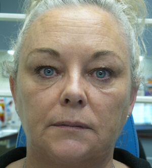 botox liquid facelift