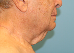 Necklift Before