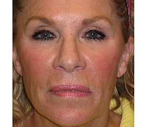 sculptra after