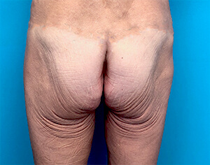 sculptra butt lift - before