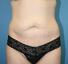 slimlipo after