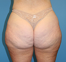 slimlipo liposculpture after