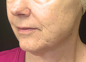 Microneedling: Vivace, Rejuvapen, Accutite on Boston's South