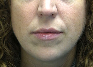 juvederm volbella after