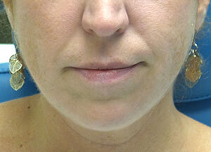 juvederm volbella before