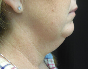 Coolsculpting Neck Before
