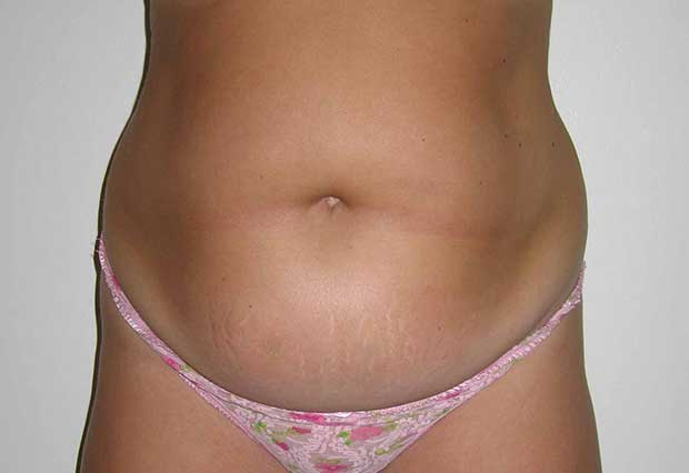 Drainless Tummy Tuck Abdominoplasty - Christine Hamori, MD, FACS
