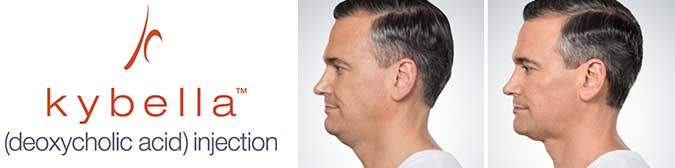 Kybella - Injection for Double Chin