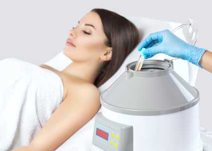 PRP Microneedling photo