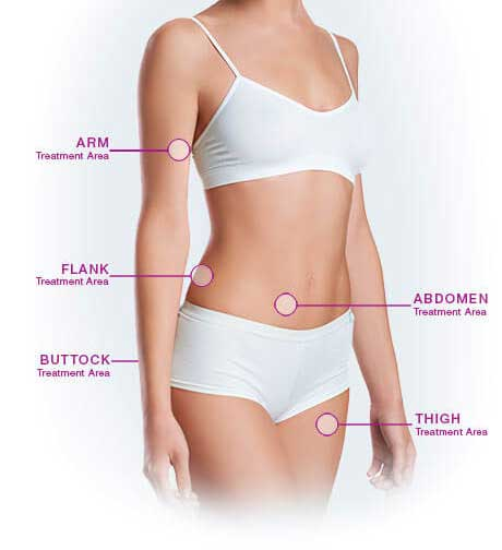 VelaShape treatment areas